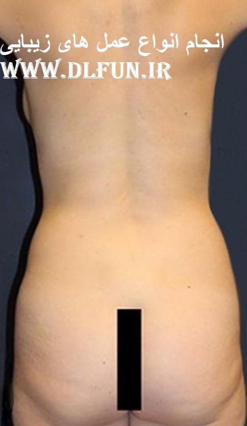 جراحی زیبایی اندام تناسلی