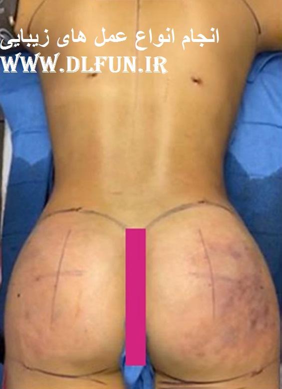 جراحی زیبایی بدن