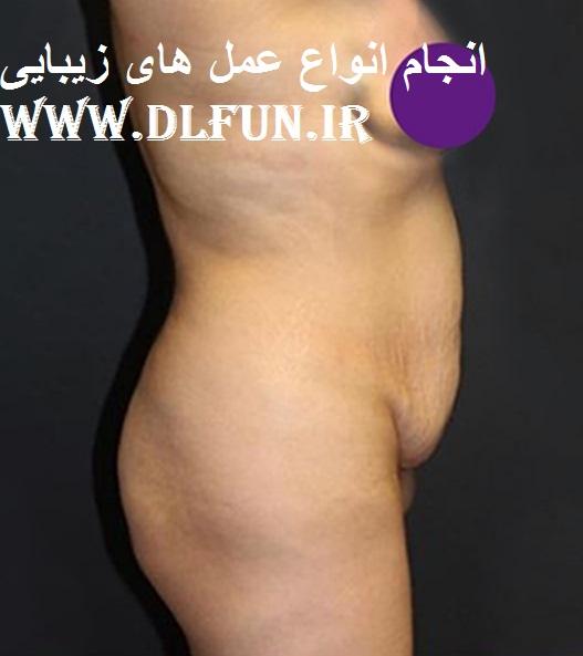 دکتر جراح زیبایی بدن
