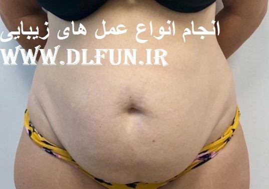 بهترین جراح لب ایران
